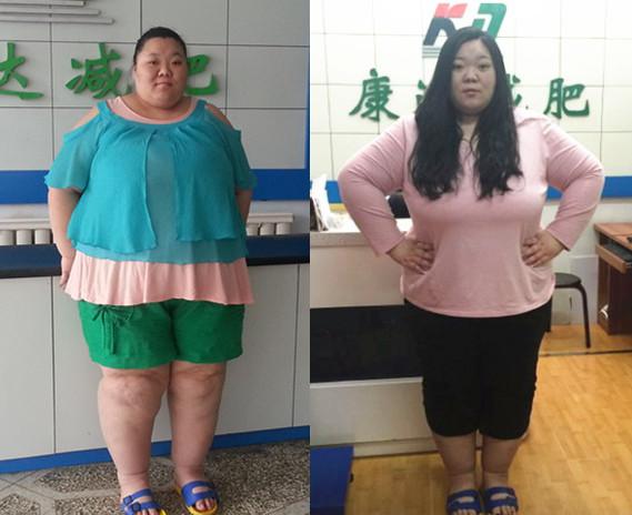"""440斤""""亚洲第一胖女""""刘廷廷来长春减肥"""