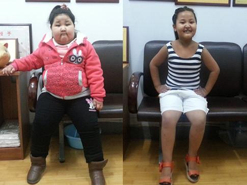 114斤女童减重45斤 爱照相了