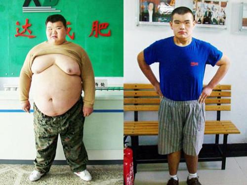 """""""湖南第一胖""""在长春康达医院成功减"""