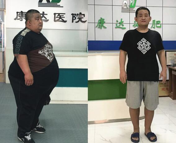 胖厨师刘尚涛体重508斤 不堪重负到长