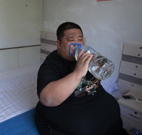 为什么有的人喝水都胖?【长春减肥】