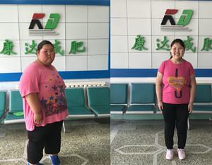辍学到长春康达医院减肥的刁丽丽已减掉168斤