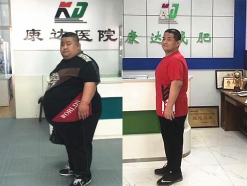 508斤刘尚涛一年半减肥321斤(视频)