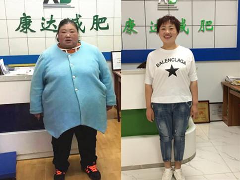 380斤杨盼盼在长春康达成功减重242斤后颜值都开