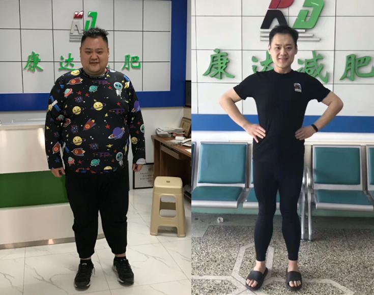 345斤大学生为圆音乐梦到长春康达医院减肥 一年减掉半个自己