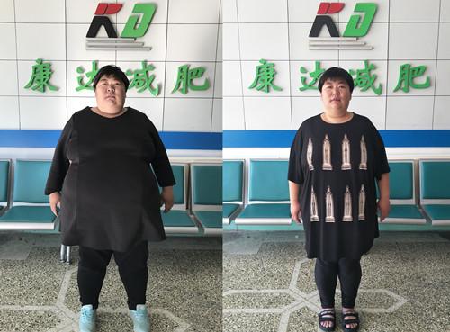 361斤莱州孙晓萍在长春康达医院减肥四个月暴瘦122斤