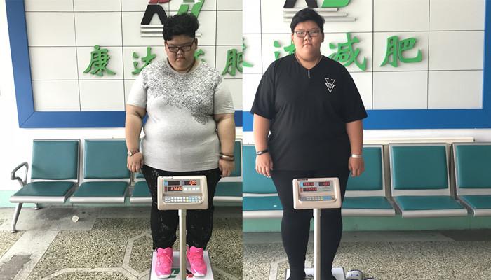 17岁女孩重372斤休学到长春康达医院