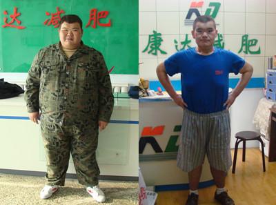 """【康达减肥成功案例】""""湖南第一胖"""""""