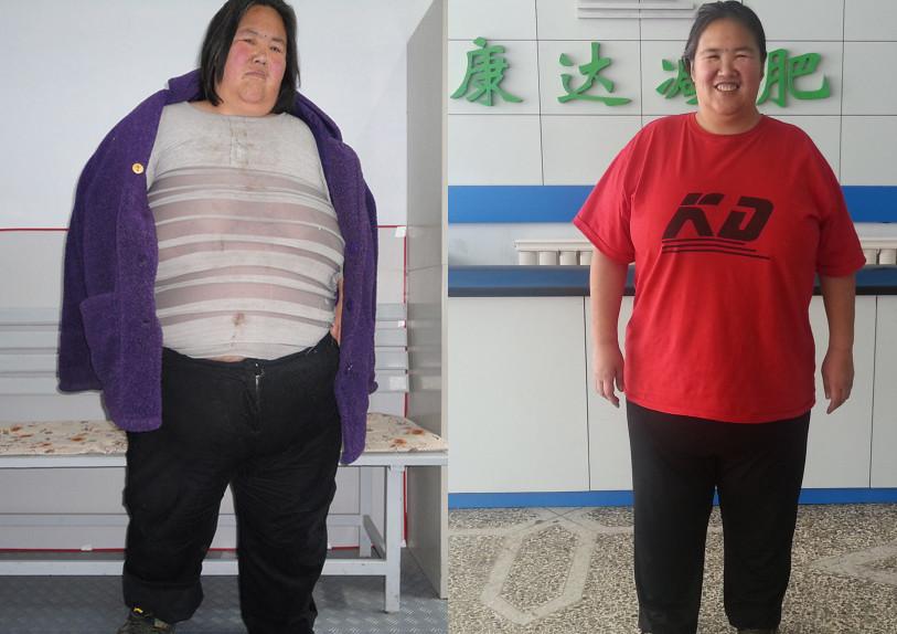 中国第一胖付彩云_因感情狂增373斤【长春减肥】