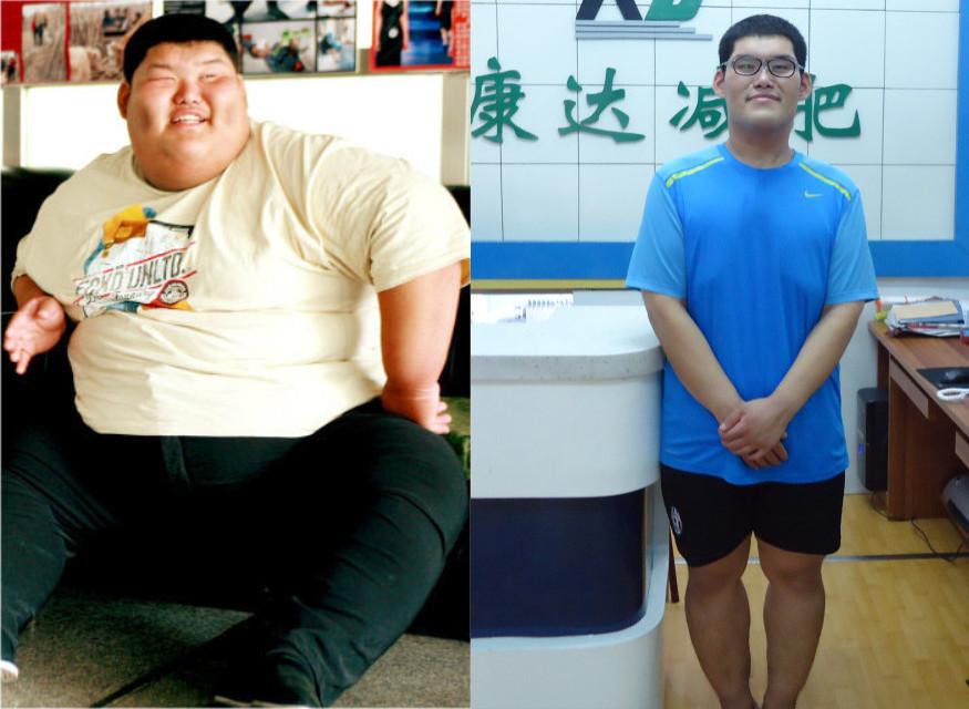 """""""中国第一胖""""一年减掉122.5公斤"""