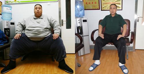 山东第一胖15个月减掉280斤