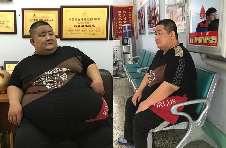 """""""河北第一胖""""瘦了【已瘦身190斤】"""