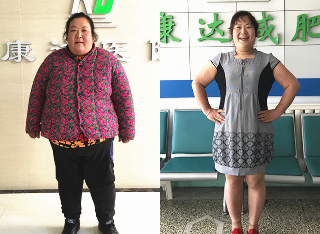 胖妈陈四半年减重136.8斤【长春康达