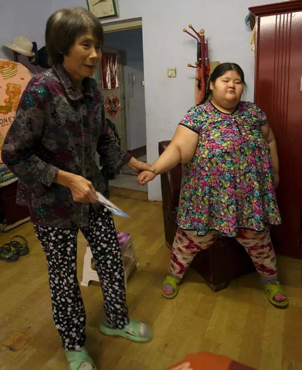 12岁重126公斤小胖丫到康达减肥
