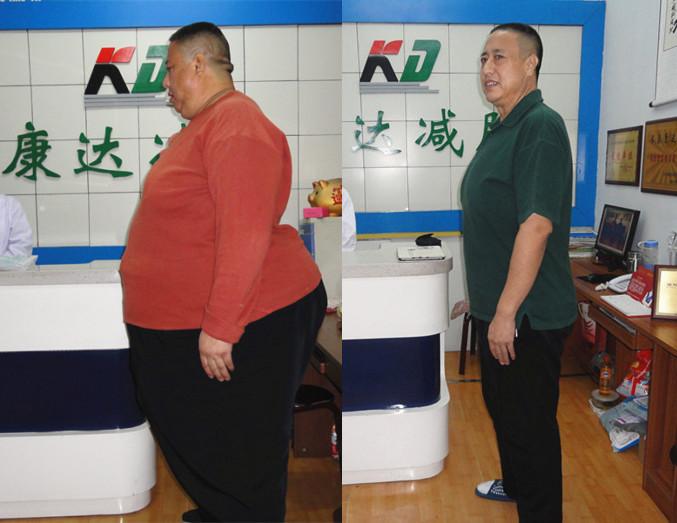 山东大叔+小伙成功减掉455斤【康达减肥案例】