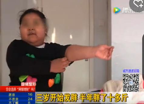 五岁女童重101斤 过个节胖了10多斤