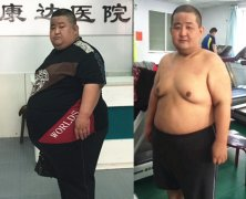 长春康达医院_481斤减到202斤是怎样一种体验?
