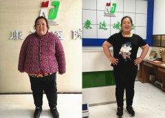 324斤胖妈陈四瘦了瘦了_两个月瘦了86斤【长春康达】