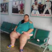 来长春减肥的她是目前有记载的最重的亚洲女性