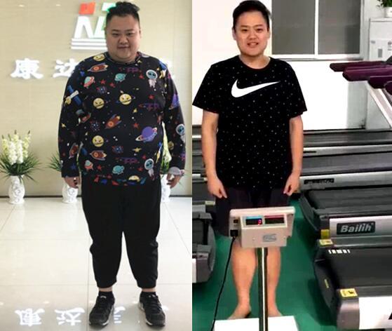 郑虎在长春康达减肥7个月瘦了146斤
