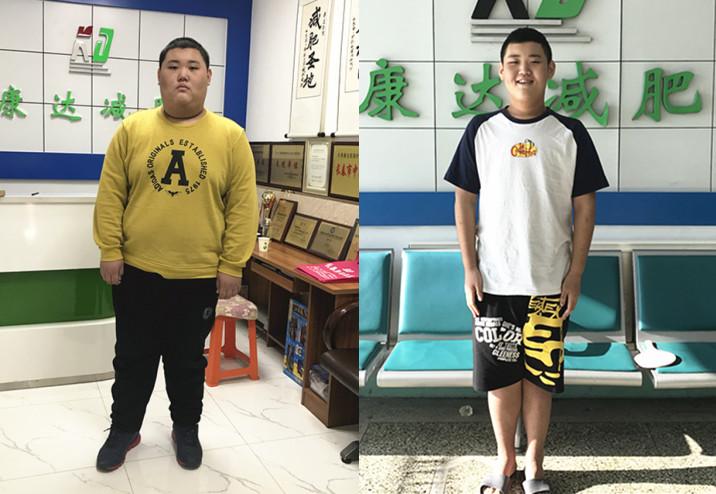 306斤男孩到长春康达减肥 6个月减重128.6斤