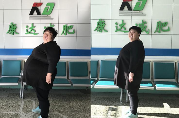 孙晓萍在长春康达减肥俩月瘦90斤 曾因肥胖引发婚姻矛盾