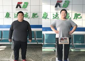 金牌销售刘小冬长春减肥两个月瘦了75斤