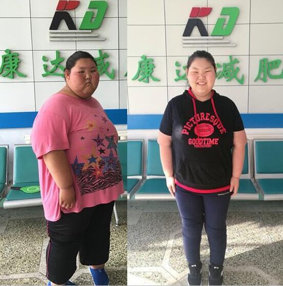 16岁刁丽丽重330斤 在长春康达减重154斤