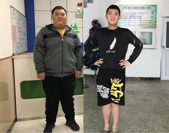"""""""00后""""张�D哲在长春康达医院成功减重140斤"""