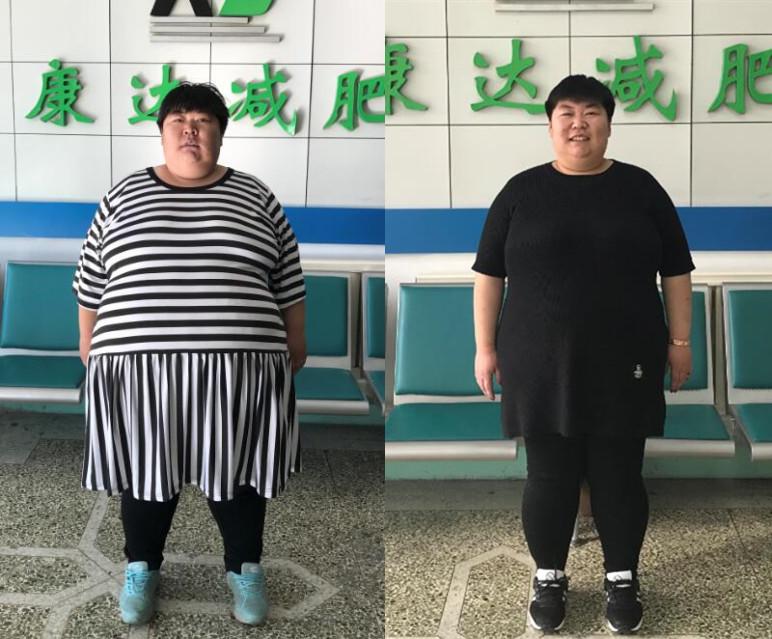 莱州孙晓萍长春康达减肥100天甩肉110