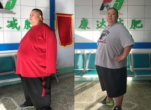 退役柔道冠军孙洪涛到长春康达医院减肥 3个月甩肉112斤
