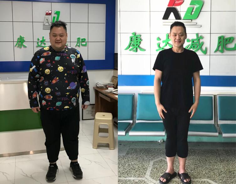 郑虎在长春康达医院减肥9个月暴瘦165斤