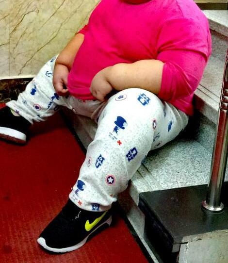 统计方式不同致美华裔儿童肥胖率或被