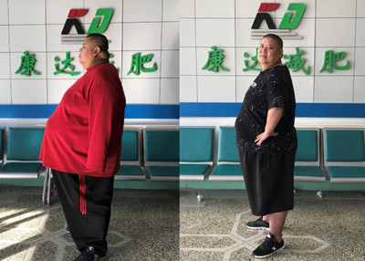 退役柔道冠军重480斤 在长春康达减肥4个月瘦133.4斤