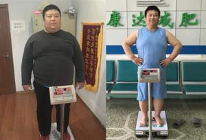 刘小冬在长春康达医院减肥四个月瘦了106.6斤