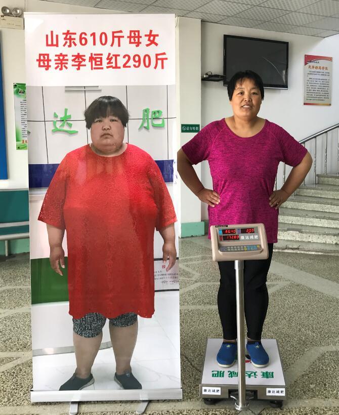 山东610斤母女不堪重负到长春康达医院减肥 母亲已甩肉117.2斤