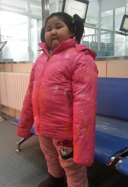 研究发现:儿童肥胖会影响肝脏健康