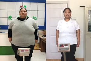 95后女孩辍学到长春康达医院减肥 6个多月甩肉近151斤