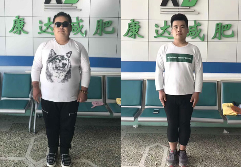 吕云飞因肥胖高血压而失明,在长春康