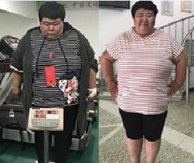 在长春康达减肥20天瘦35斤的杨茹祝大