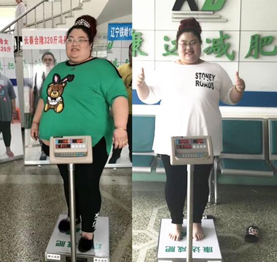 在长春康达医院减肥30天,胖姐张桂菊
