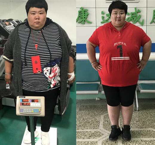 杨茹在长春康达医院减肥治疗一个月瘦39斤