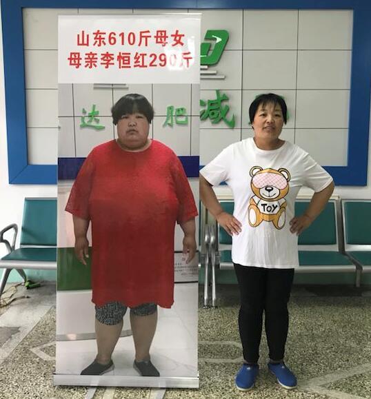 山东母女体重相加610斤 母亲在长春康达医院成功减重125斤