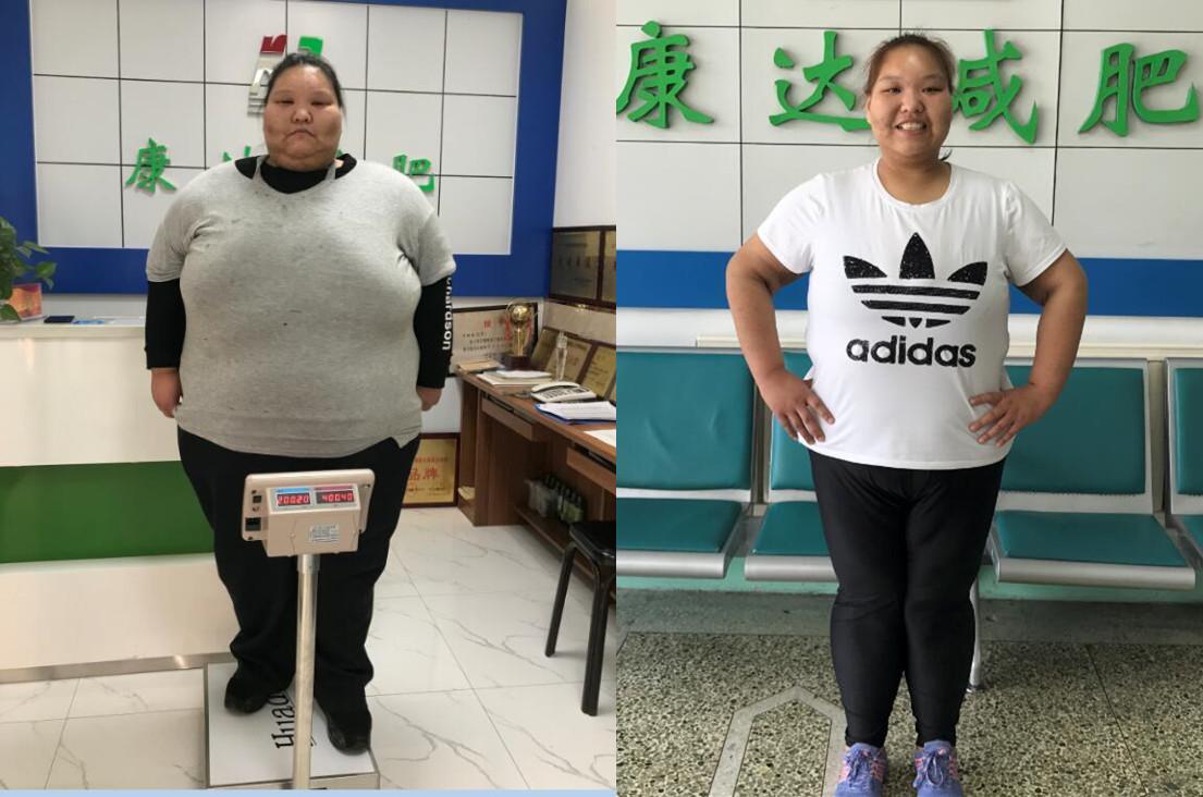 在长春康达医院减肥164斤,左亚慈只