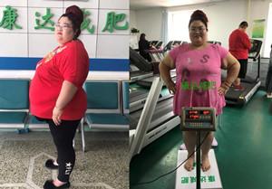 张桂菊在长春康达医院减肥40天甩肉37.8斤