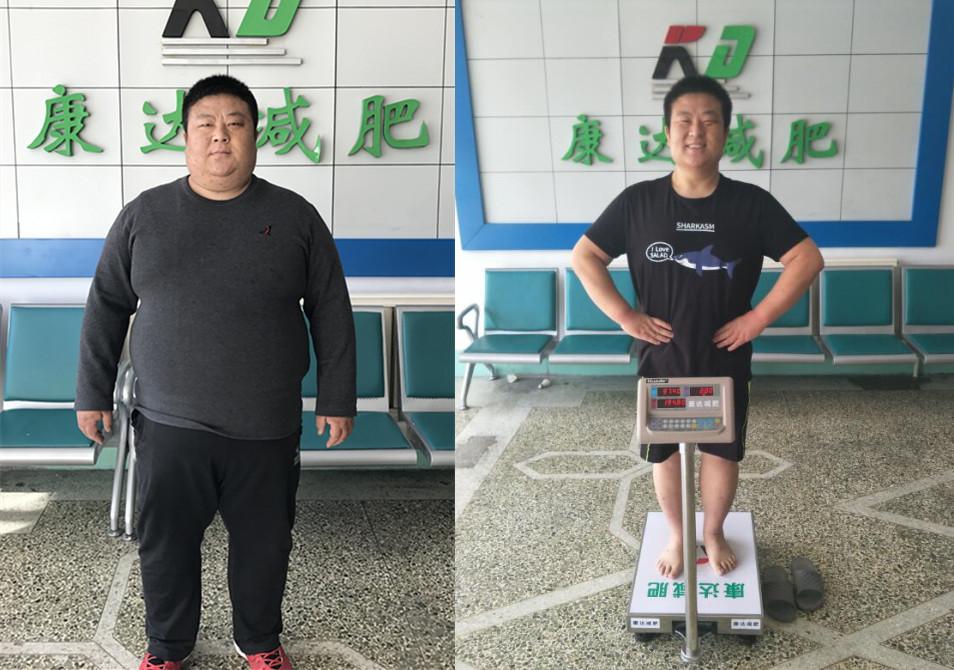 《大王小王》321斤刘小冬到长春康达医院减肥 半年铲肉135.2斤