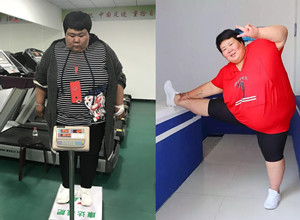 在长春康达减肥两个月掉60多斤!阜阳