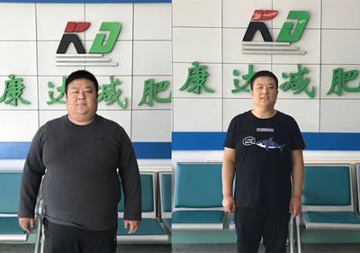 在长春康达医院减肥半年,刘小冬甩肉140斤!