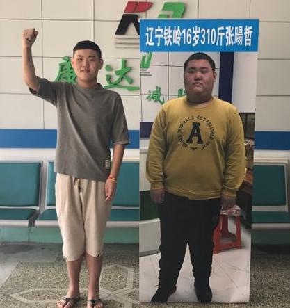 在长春康达减肥医院1年减掉150斤 青