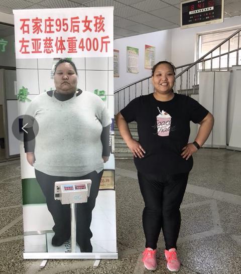 辍学到长春康达医院减肥的她已减重173斤!
